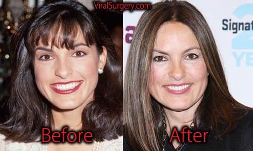 Mariska Hargitay Plastic Surgery