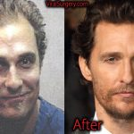 Matthew McConaughey Plastic Surgery, Before After Hair Transplant