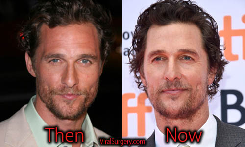 Matthew McConaughey Plastic Surgery Picture