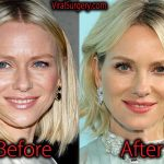 Naomi Watts Plastic Surgery, Before and After Botox Pictures