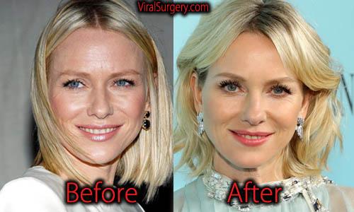 Naomi Watts Plastic Surgery
