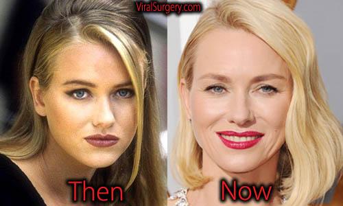 Naomi Watts Plastic Surgery Nose Job, Botox