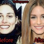 Olivia Palermo Plastic Surgery, Before and After Nose Job Pictures