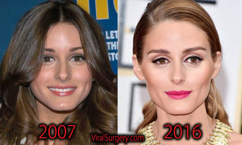 Olivia Palermo Plastic Surgery, Nose Job