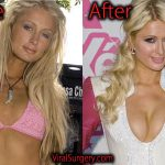 Paris Hilton Plastic Surgery Before After Nose Job, Boob Job Pics