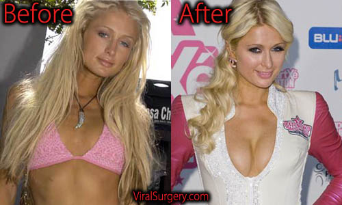 Paris Hilton Plastic Surgery