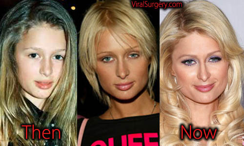 paris hilton plastic surgery before after nose job boob