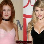 Renee Olstead Plastic Surgery: Before After Botox, Boob Job Pictures