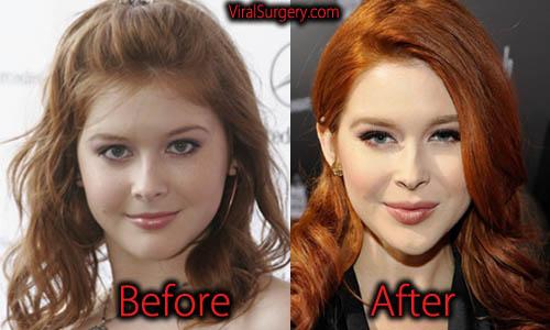 Renee Olstead Plastic Surgery