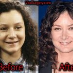 Sara Gilbert Plastic Surgery, Before and After Nose Job Pictures