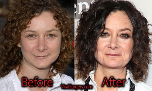 Sara Gilbert Plastic Surgery