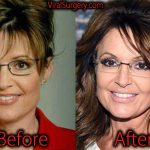 Sarah Palin Plastic Surgery, Before and After Botox Pictures