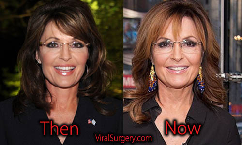 Sarah Palin Plastic Surgery