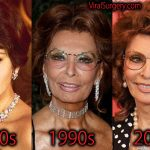 Sophia Loren Plastic Surgery, Before and After Facelift Pictures