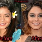 Vanessa Hudgens Plastic Surgery, Before After Nose Job Pictures