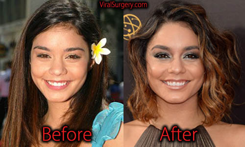 Vanessa Hudgens Plastic Surgery