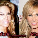 Adrienne Maloof Plastic Surgery: Before After Botox, Nose Job Pics