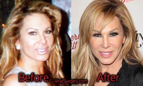 Adrienne Maloof Plastic Surgery