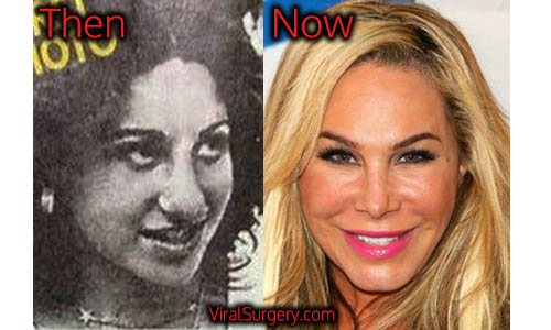 Adrienne Maloof Plastic Surgery, Nose Job