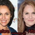 Amy Brenneman Plastic Surgery, Before and After Pictures