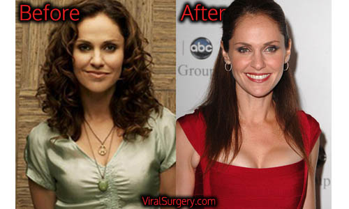Amy Brenneman Plastic Surgery