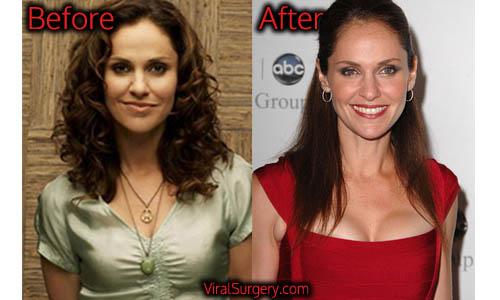 Amy Brenneman Plastic Surgery