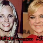 Anna Faris Plastic Surgery, Before and After Pictures