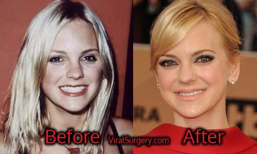 Anna Faris Plastic Surgery