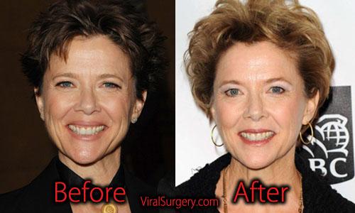 Annette Bening Plastic Surgery
