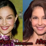 Ashley Judd Plastic Surgery, Before and After Botox Pictures
