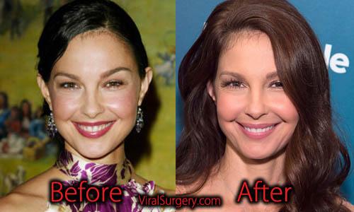 Ashley Judd Plastic Surgery