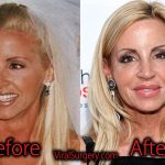 Camille Grammer Plastic Surgery: Before After Botox, Boob Job Pics