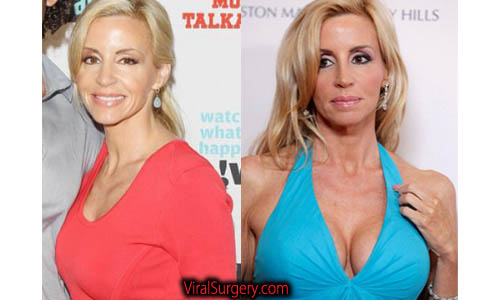 Camille Grammer Plastic Surgery, Boob Job