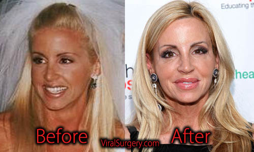 Camille Grammer Plastic Surgery