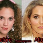 Elizabeth Berkley Plastic Surgery, Before After Botox Pictures