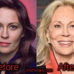 Faye Dunaway Plastic Surgery, Before and After Facelift Pictures