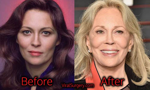 Faye Dunaway Plastic Surgery Before And After Facelift