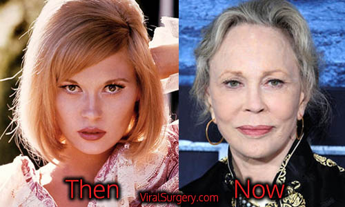 Faye Dunaway Plastic Surgery Picture
