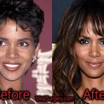 Halle Berry Plastic Surgery: Before After Nose, Boob Job Pictures