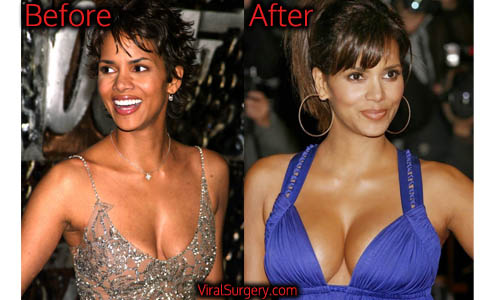 Halle Berry Plastic Surgery, Boob Job