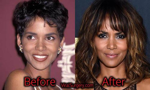 Halle Berry Plastic Surgery