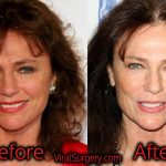 Jacqueline Bisset Plastic Surgery, Before and After Facelift Pictures