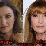Jane Seymour Plastic Surgery, Before and After Pictures