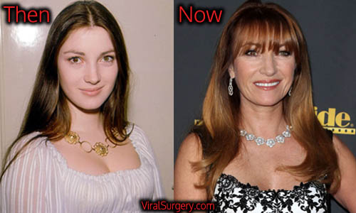 Jane Seymour Plastic Surgery