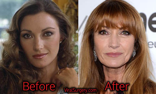 Jane Seymour Plastic Surgery