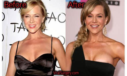 Julie Benz Plastic Surgery