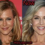 Julie Benz Plastic Surgery, Before After Boob Job, Botox Pictures