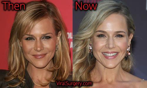 Julie Benz Plastic Surgery, Botox