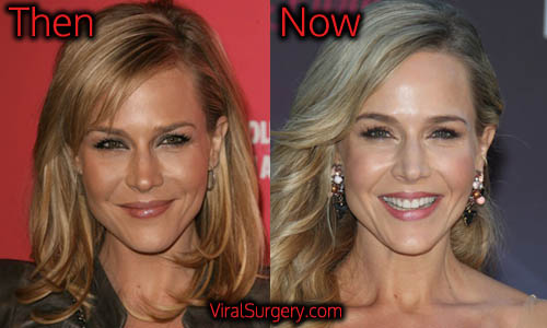 Julie Benz Plastic Surgery, Botox