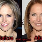 Katie Couric Plastic Surgery: Before and After Facelift, Botox Pics